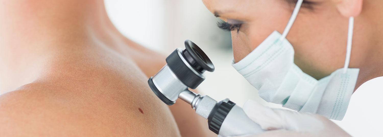 consult-dermatolog