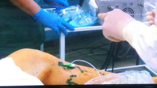 лазерное лечение вен (1)