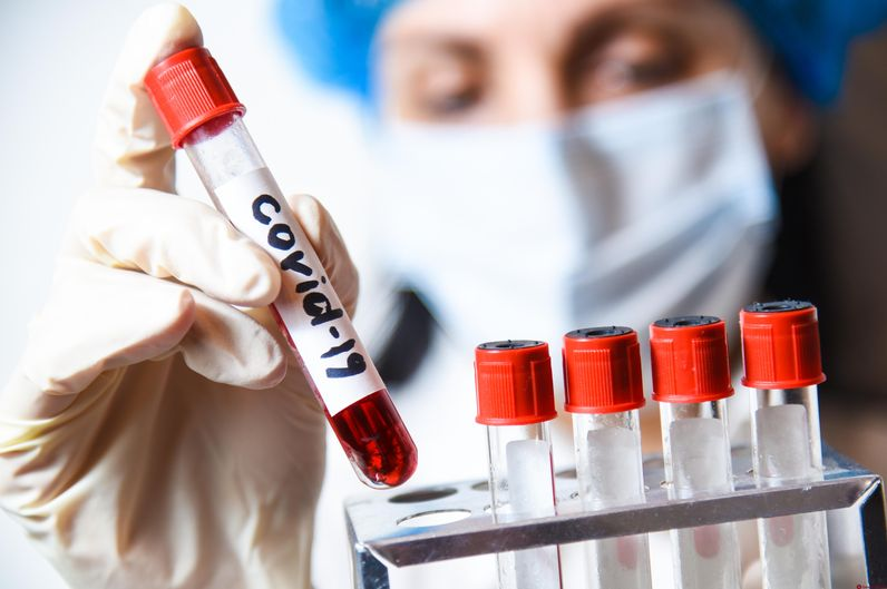 Сдать тест на коронавирус (Ковид-19) в Нижнем Новгороде