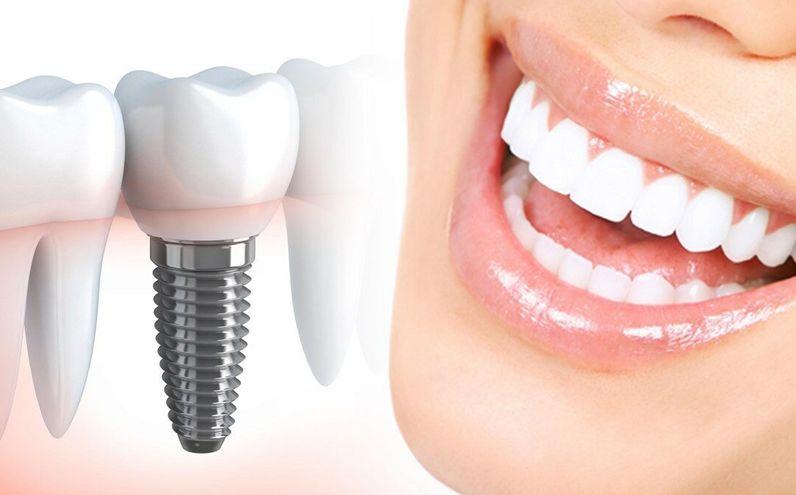 Услуга имплантации зубов в Нижнем Новгороде